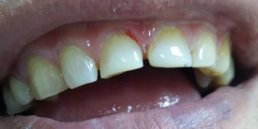 Ремонт скола переднего зуба