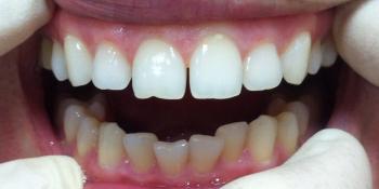 Жалобы на дефект режущего края зуба и наличие щели между центральными зубами фото до лечения