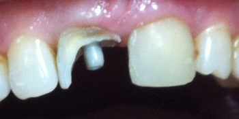 Экстренное восстновление коронковой части обеих центральных зубов фото до лечения