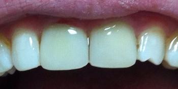 Экстренное восстновление коронковой части обеих центральных зубов фото после лечения