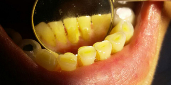Снятие наддесневого зубного камня при помощи ультразвука фото до лечения