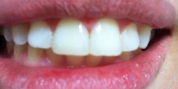 Жалобы на дефект режущего края зуба и наличие щели между центральными зубами фото после лечения