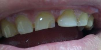 Ремонт скола переднего зуба фото до лечения