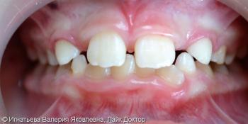 Лечение кариеса молочных зубов материалом Filtek Z250 фото после лечения