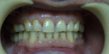 Работа 2 фото до лечения