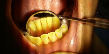 Снятие наддесневого зубного камня при помощи ультразвука фото после лечения