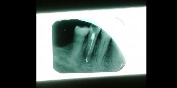 Лечение каналов корня зуба фото после лечения