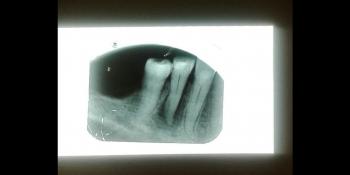 Лечение каналов корня зуба фото до лечения