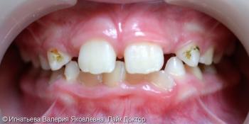 Лечение кариеса молочных зубов материалом Filtek Z250 фото до лечения